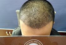 Chăm Sóc Sau khi cấy tóc đường chữ M