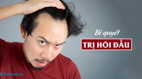 cách chữa hói đầu ở nam giới