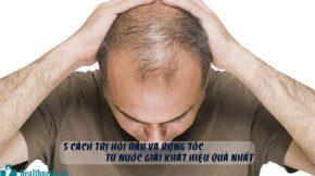 cách trị hói đầu và rụng tóc