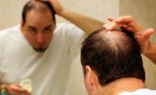 Thuốc trị hói đầu ở nam giới