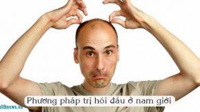 trị hói đầu ở nam giới