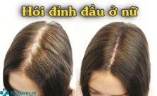 Hói đỉnh đầu ở nữ
