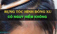 Rụng tóc hình đồng xu