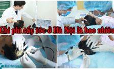 Chi phí cấy tóc ở Hà Nội