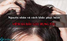 Viêm da đầu gây rụng tóc