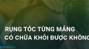 bệnh rụng tóc từng mảng