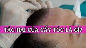 tác hại của cấy tóc?