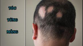 Rụng tóc tửng mảng