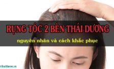 Rụng tóc 2 bên thái dương - Nguyên nhân và cách khắc phục