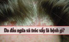 Da đầu ngứa và tróc vẩy
