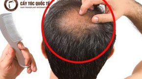 cách khắc phục tóc thưa hói ở đỉnh đầu