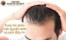 rụng tóc phần trán