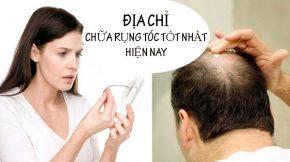 Địa chỉ chữa rụng tóc tốt nhất