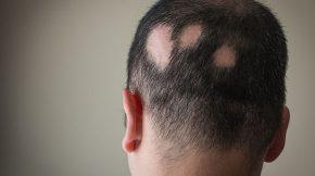 kinh nghiệm chữa rụng tóc từng mảng